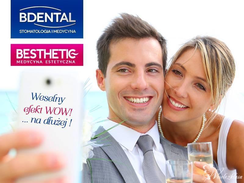 Wybielanie zebów, medycyna estetyczna (zęby, botox, mezoterapia), Gliwice - zdjęcie 1
